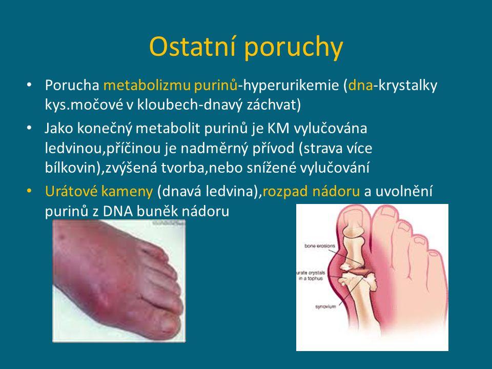 Ostatní poruchy Porucha metabolizmu purinů-hyperurikemie (dna-krystalky kys.močové v kloubech-dnavý záchvat) Jako konečný metabolit purinů je KM vylučována ledvinou,příčinou je nadměrný přívod (strava více bílkovin),zvýšená tvorba,nebo snížené vylučování Urátové kameny (dnavá ledvina),rozpad nádoru a uvolnění purinů z DNA buněk nádoru