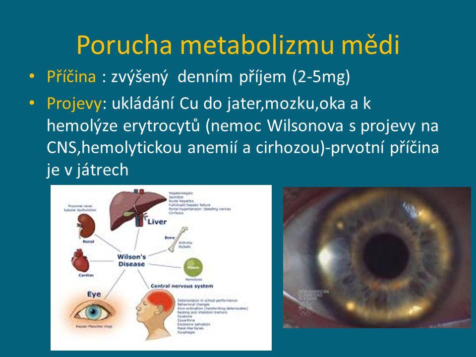 Porucha metabolizmu mědi Příčina : zvýšený denním příjem (2-5mg) Projevy: ukládání Cu do jater,mozku,oka a k hemolýze erytrocytů (nemoc Wilsonova s projevy na CNS,hemolytickou anemií a cirhozou)-prvotní příčina je v játrech