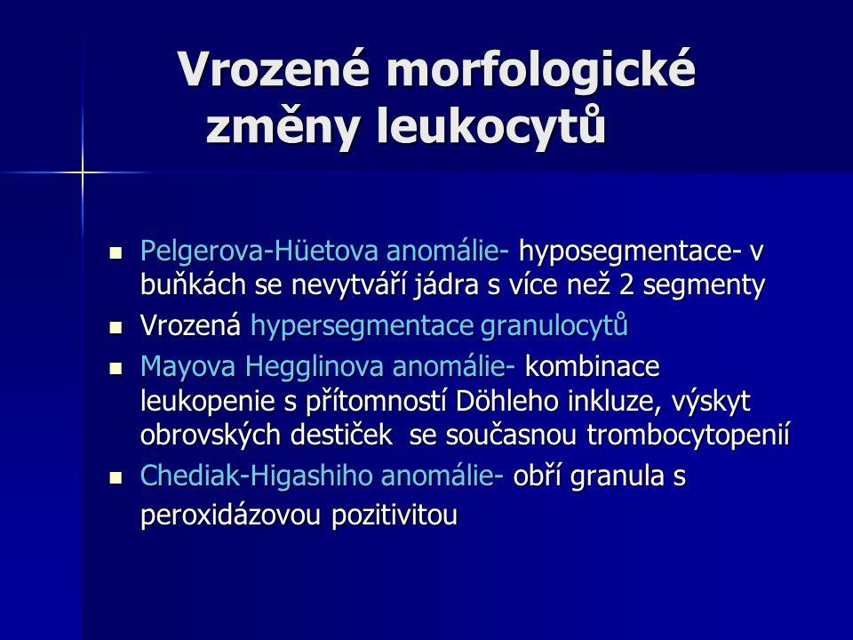 Vrozené morfologické změny leukocytů Vrozené morfologické změny leukocytů Pelgerova-Hüetova anomálie- hyposegmentace- v buňkách se nevytváří jádra s více než 2 segmenty Pelgerova-Hüetova anomálie- hyposegmentace- v buňkách se nevytváří jádra s více než 2 segmenty Vrozená hypersegmentace granulocytů Vrozená hypersegmentace granulocytů Mayova Hegglinova anomálie- kombinace leukopenie s přítomností Döhleho inkluze, výskyt obrovských destiček se současnou trombocytopenií Mayova Hegglinova anomálie- kombinace leukopenie s přítomností Döhleho inkluze, výskyt obrovských destiček se současnou trombocytopenií Chediak-Higashiho anomálie- obří granula s peroxidázovou pozitivitou Chediak-Higashiho anomálie- obří granula s peroxidázovou pozitivitou
