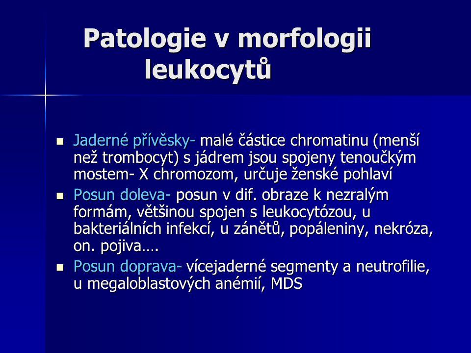 Patologie v morfologii leukocytů Patologie v morfologii leukocytů Jaderné přívěsky- malé částice chromatinu (menší než trombocyt) s jádrem jsou spojeny tenoučkým mostem- X chromozom, určuje ženské pohlaví Jaderné přívěsky- malé částice chromatinu (menší než trombocyt) s jádrem jsou spojeny tenoučkým mostem- X chromozom, určuje ženské pohlaví Posun doleva- posun v dif.