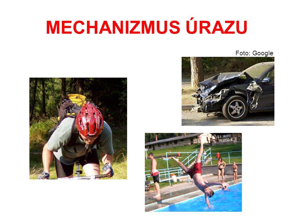 MECHANIZMUS ÚRAZU Foto: Google