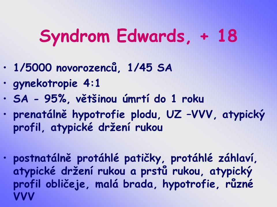 Syndrom Edwards, + 18 1/5000 novorozenců, 1/45 SA gynekotropie 4:1 SA - 95%, většinou úmrtí do 1 roku prenatálně hypotrofie plodu, UZ –VVV, atypický p