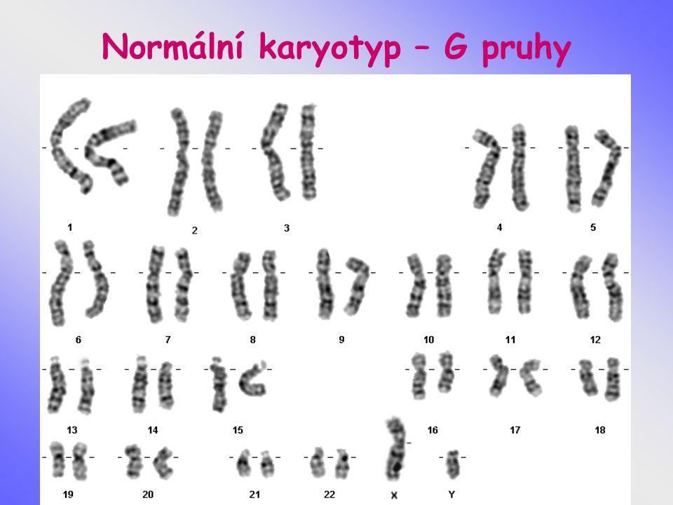 Genetická vyšetření u pacientů s poruchou reprodukce Genetické poradenství - genealogie, anamnesa Cytogenetické vyšetření Karyotyp Získané chromosomální aberace – při práci v rizikovém prostředí nebo dlouhodobé léčbě Molekulárně genetická vyšetření CFTR gen - zátěž, prevence Leidenská mutace - faktor V, Prothrombin- faktor II - G20210A, oblast Yp – azoospermický faktor AZF a,b,c - těžká oligo a azoospermie