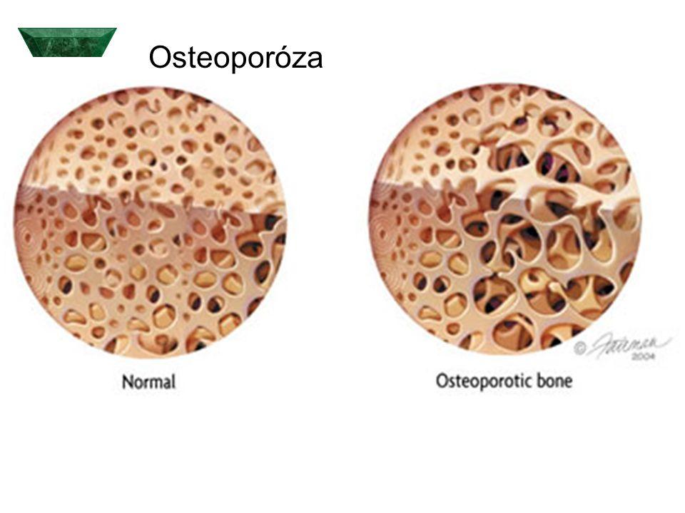  Během menopauzy dochází k v důsledku poklesu estrogenů k akceleraci jak markerů destrukce, tak novotvorby kostí.