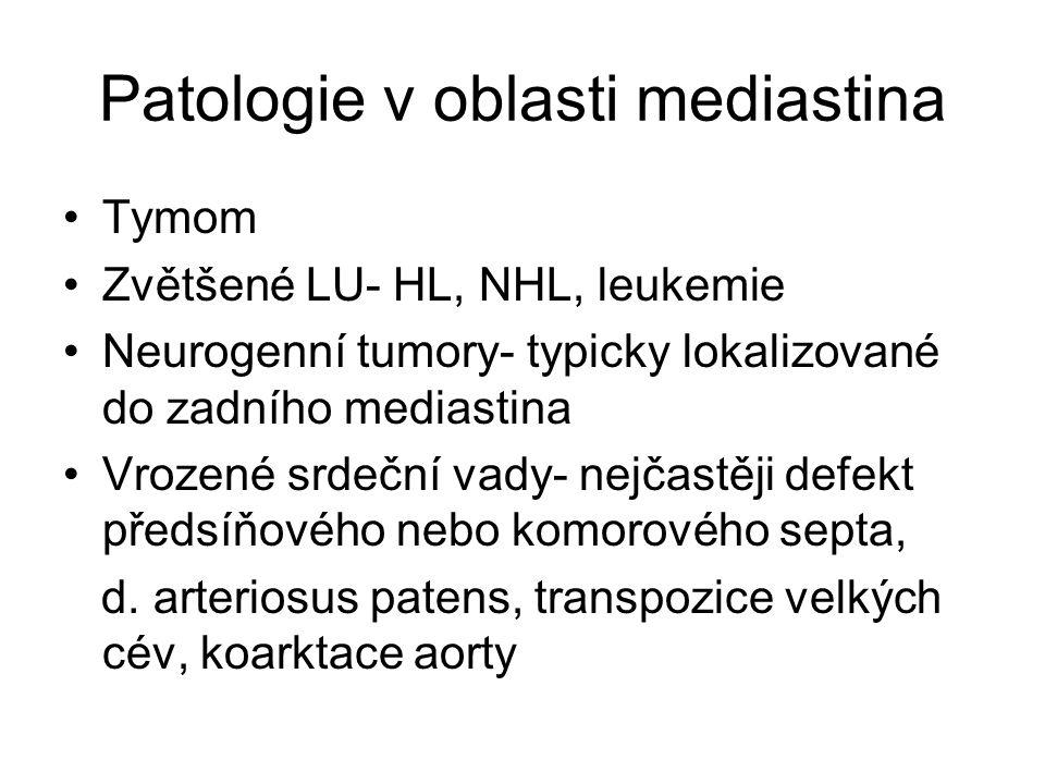 Patologie v oblasti mediastina Tymom Zvětšené LU- HL, NHL, leukemie Neurogenní tumory- typicky lokalizované do zadního mediastina Vrozené srdeční vady