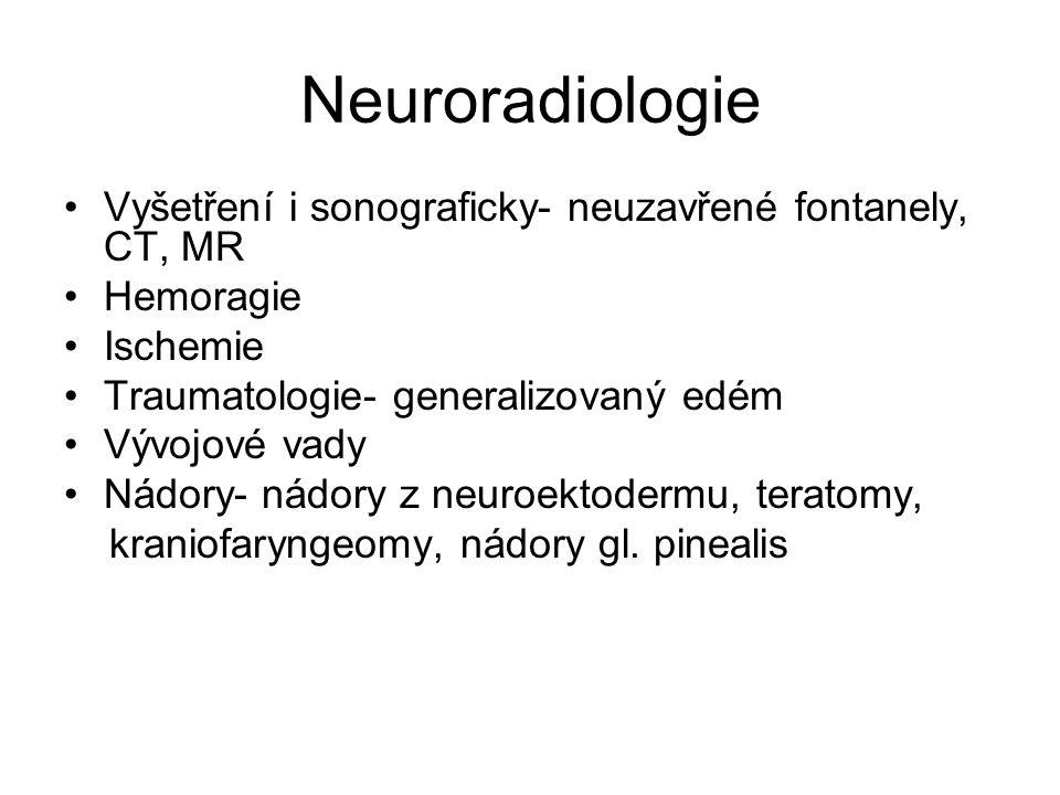 Neuroradiologie Vyšetření i sonograficky- neuzavřené fontanely, CT, MR Hemoragie Ischemie Traumatologie- generalizovaný edém Vývojové vady Nádory- nád