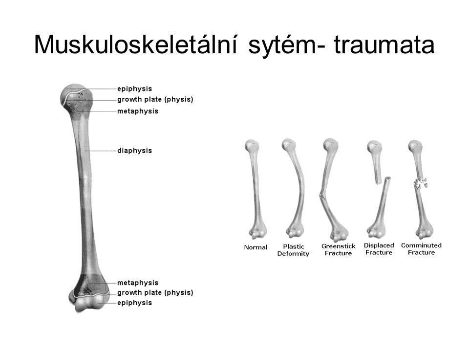 Muskuloskeletální sytém- traumata