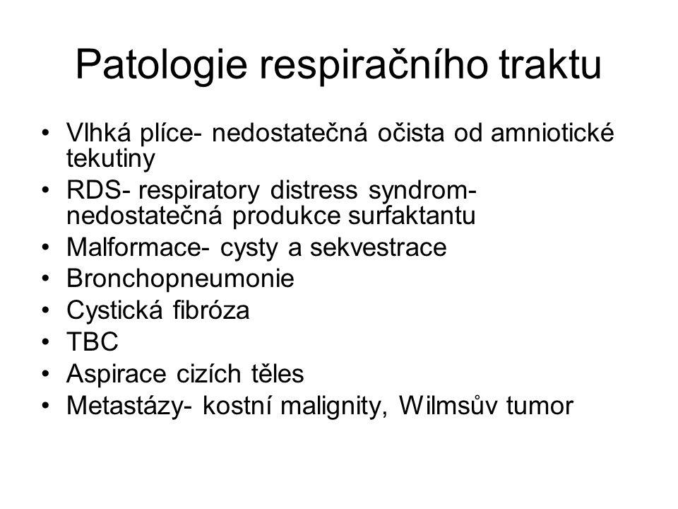 Patologie respiračního traktu Vlhká plíce- nedostatečná očista od amniotické tekutiny RDS- respiratory distress syndrom- nedostatečná produkce surfakt
