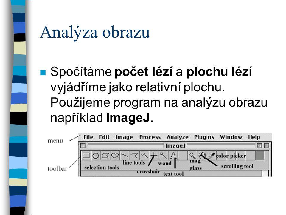 Analýza obrazu n Spočítáme počet lézí a plochu lézí vyjádříme jako relativní plochu. Použijeme program na analýzu obrazu například ImageJ.
