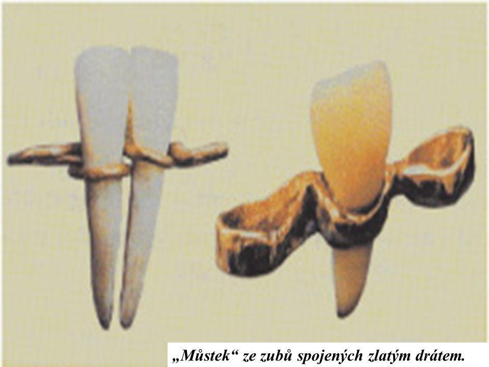 """Doktoři v dřívějších dobách ještě neznali plomby (obecný název pro zubní výplně), a proto využívali různých materiálů k zaplnění,,děr"""" po zubním kazu."""