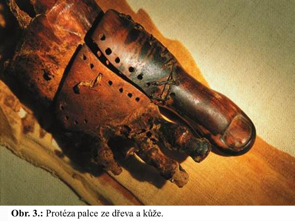 Obr. 2.: Protéza na končetině z bočního pohledu. Kombinace různých materiálů dávala umělému palci pružnost a imitovala do určité míry pohyb kloubu. Te