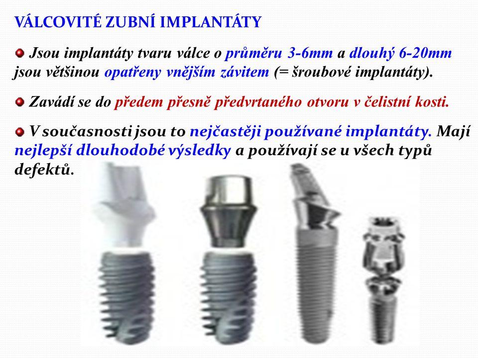 Typy zubních implantátů: Podle vztahu k prostředí ústní dutiny lze implantáty rozdělit na: 1. Uzavřené implantáty, které se dříve užívaly v podobě pod