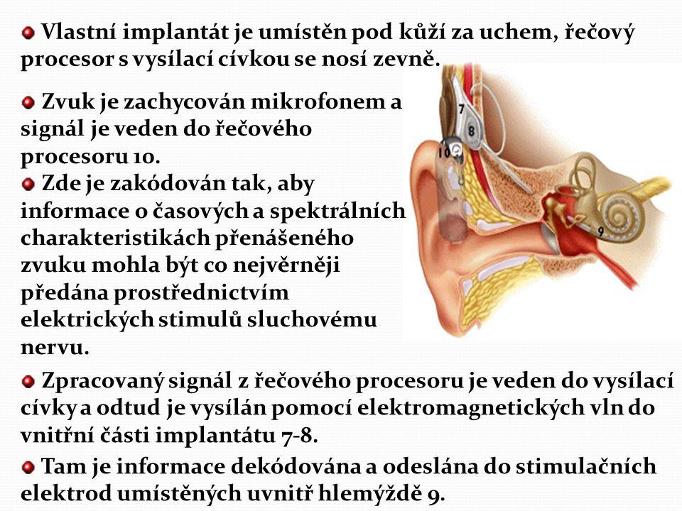 Implantace kochleárního implantátu Zákrok lze přirovnat k rozsáhlejšímu výkonu v oblasti ucha, ale jedná se o mikrochirurgický zákrok, kdy operatér pr
