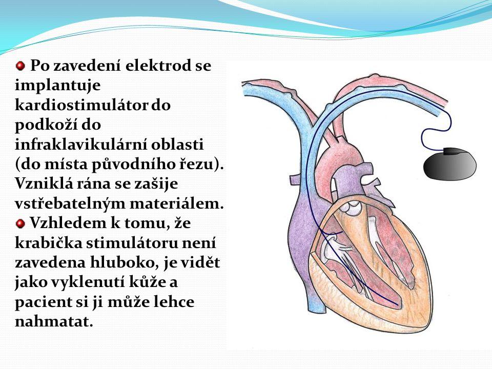 Kardiostimulátor - (pacemaker) je přístroj, který se používá k léčbě poruch srdečního rytmu majících charakter bradykardií (srdeční akce je příliš pom