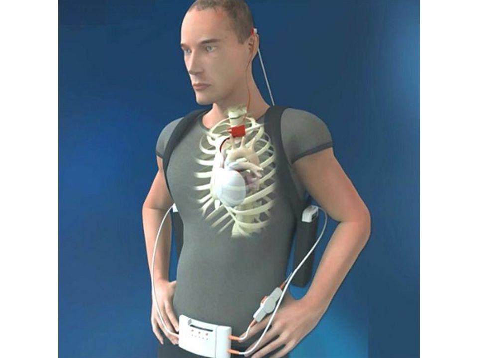 První umělé srdce má hmotnost 900 gramů, je tedy asi třikrát těžší než průměrné srdce zdravého člověka. Je závislé na externí baterii s řídící jednotk