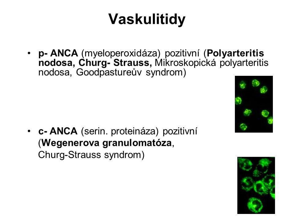 Vaskulitidy p- ANCA (myeloperoxidáza) pozitivní (Polyarteritis nodosa, Churg- Strauss, Mikroskopická polyarteritis nodosa, Goodpastureův syndrom) c- A