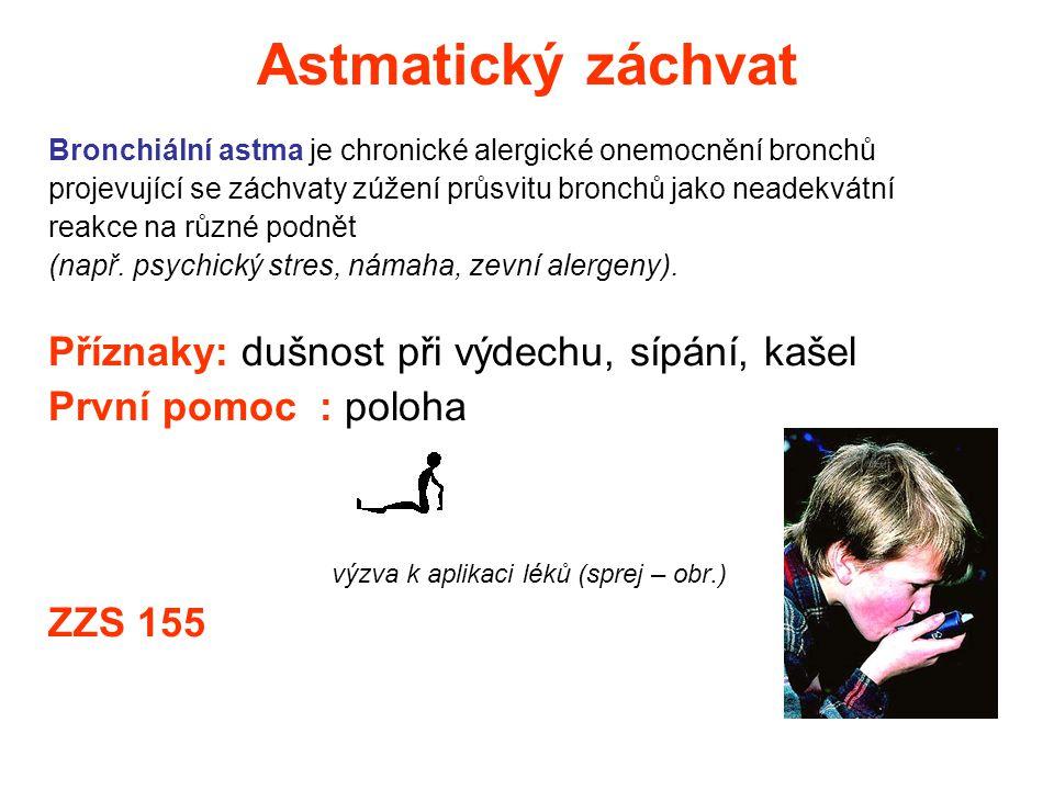 Astmatický záchvat Bronchiální astma je chronické alergické onemocnění bronchů projevující se záchvaty zúžení průsvitu bronchů jako neadekvátní reakce