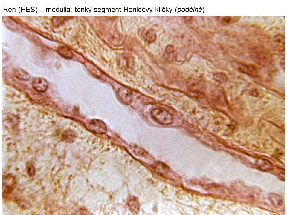 29 Ren (HES) – medulla: tenký segment Henleovy kličky (podélně)