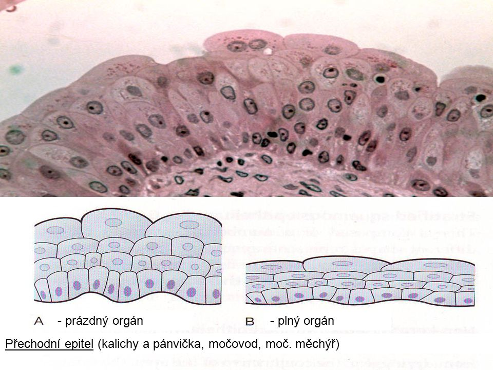 34 Přechodní epitel (kalichy a pánvička, močovod, moč. měchýř) - prázdný orgán- plný orgán
