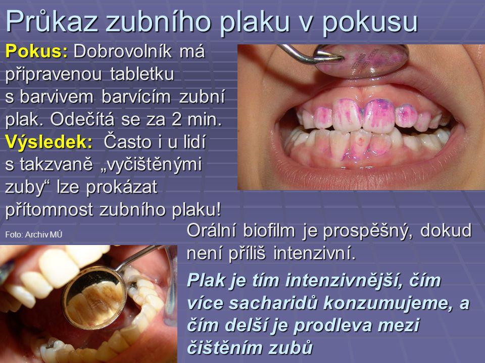 Průkaz zubního plaku v pokusu Pokus: Dobrovolník má připravenou tabletku s barvivem barvícím zubní plak. Odečítá se za 2 min. Výsledek: Často i u lidí