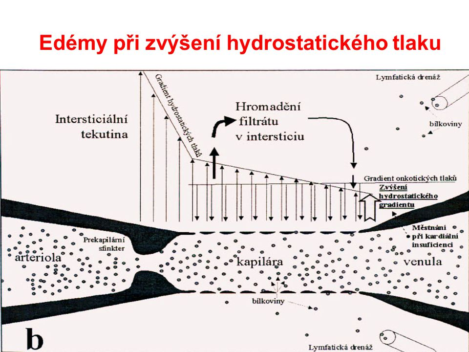 Edémy při zvýšení hydrostatického tlaku