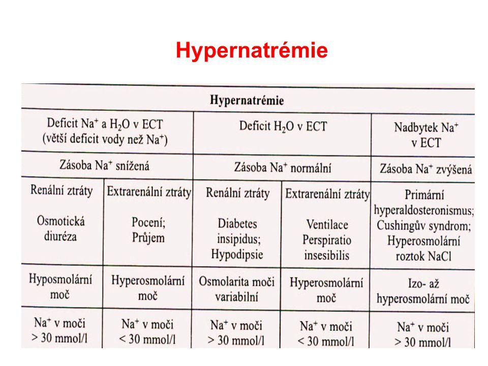 Hypernatrémie