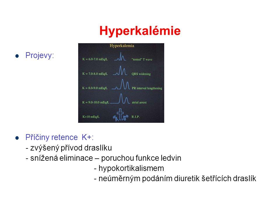 Hyperkalémie Projevy: Příčiny retence K+: - zvýšený přívod draslíku - snížená eliminace – poruchou funkce ledvin - hypokortikalismem - neúměrným podáním diuretik šetřících draslík
