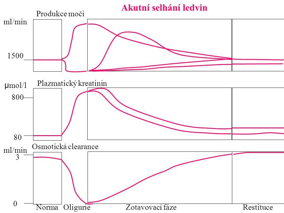 Akutní selhání ledvin RestituceZotavovací fáze Produkce moči Oligurie ml/min 1500 80 800 3 0 µ mol/l ml/min Plazmatický kreatinin Norma Osmotická clea