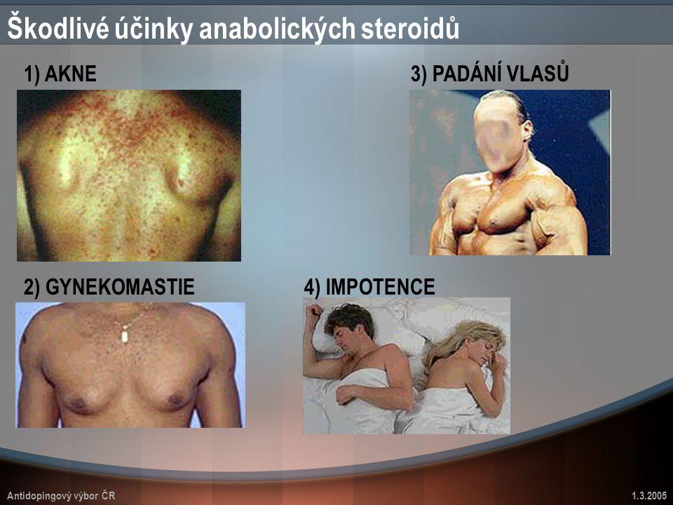 Antidopingový výbor ČR1.3.2005 Škodlivé účinky anabolických steroidů 1) AKNE 2) GYNEKOMASTIE 3) PADÁNÍ VLASŮ 4) IMPOTENCE