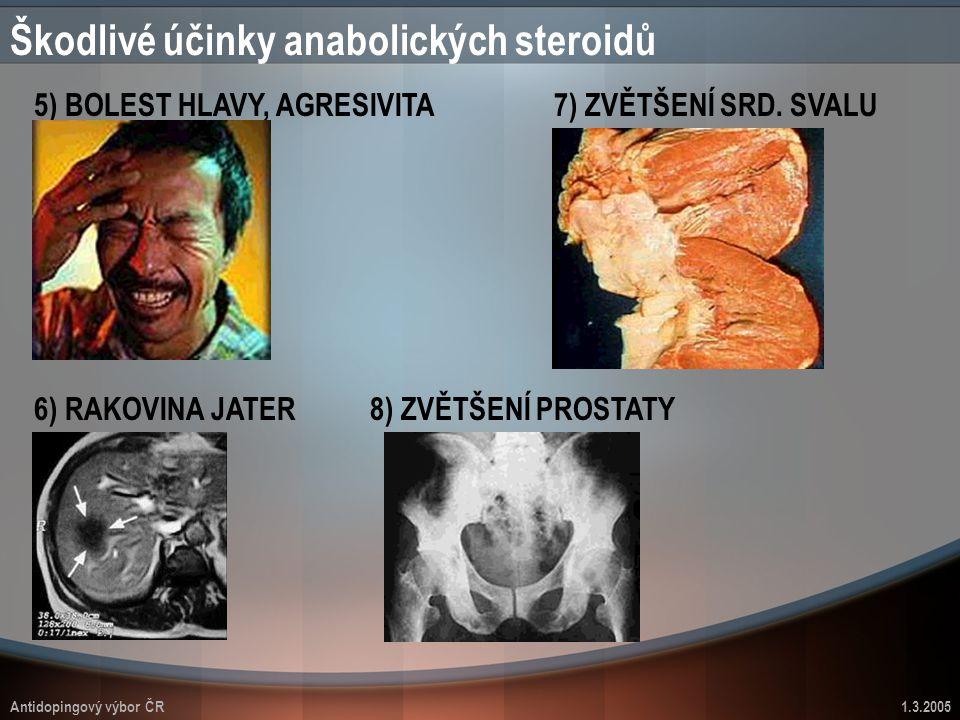 Antidopingový výbor ČR1.3.2005 Škodlivé účinky anabolických steroidů 5) BOLEST HLAVY, AGRESIVITA 6) RAKOVINA JATER 7) ZVĚTŠENÍ SRD. SVALU 8) ZVĚTŠENÍ