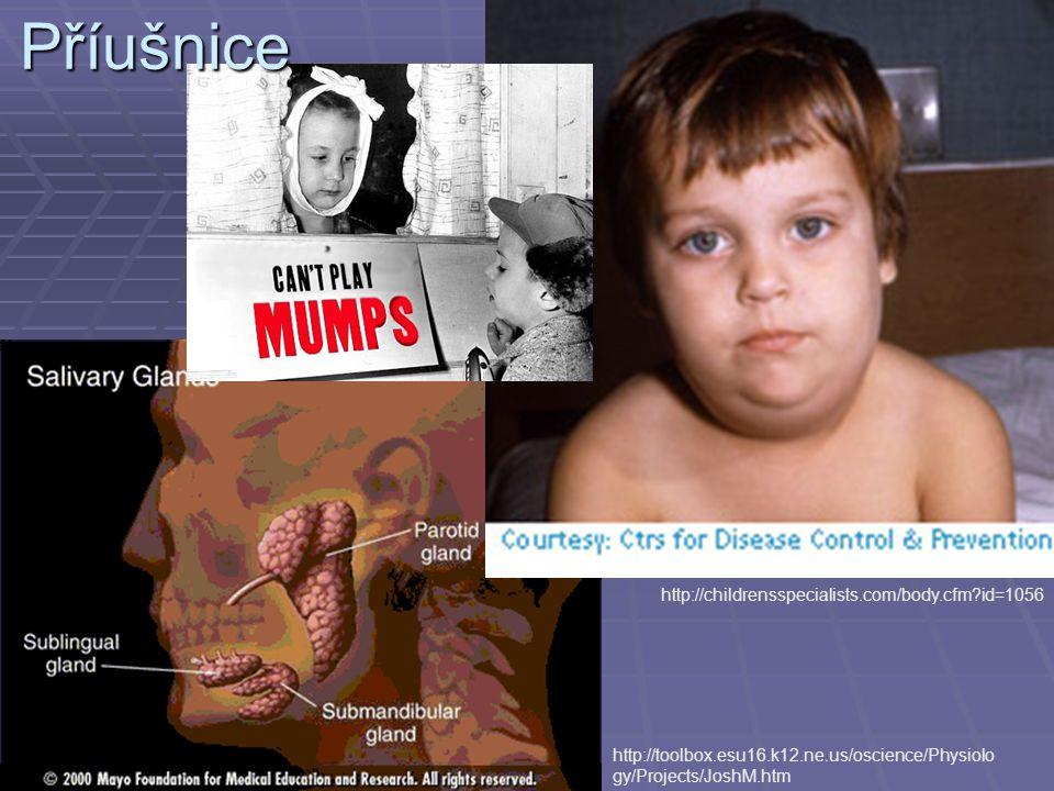 http://childrensspecialists.com/body.cfm?id=1056Příušnice