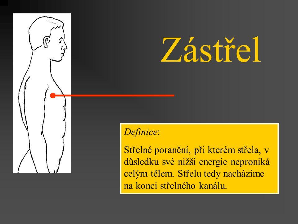 Zástřel Definice: Střelné poranění, při kterém střela, v důsledku své nižší energie neproniká celým tělem. Střelu tedy nacházíme na konci střelného ka
