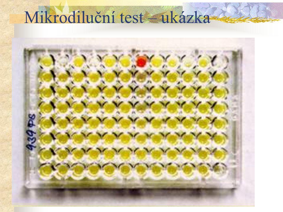 Mikrodiluční test – ukázka