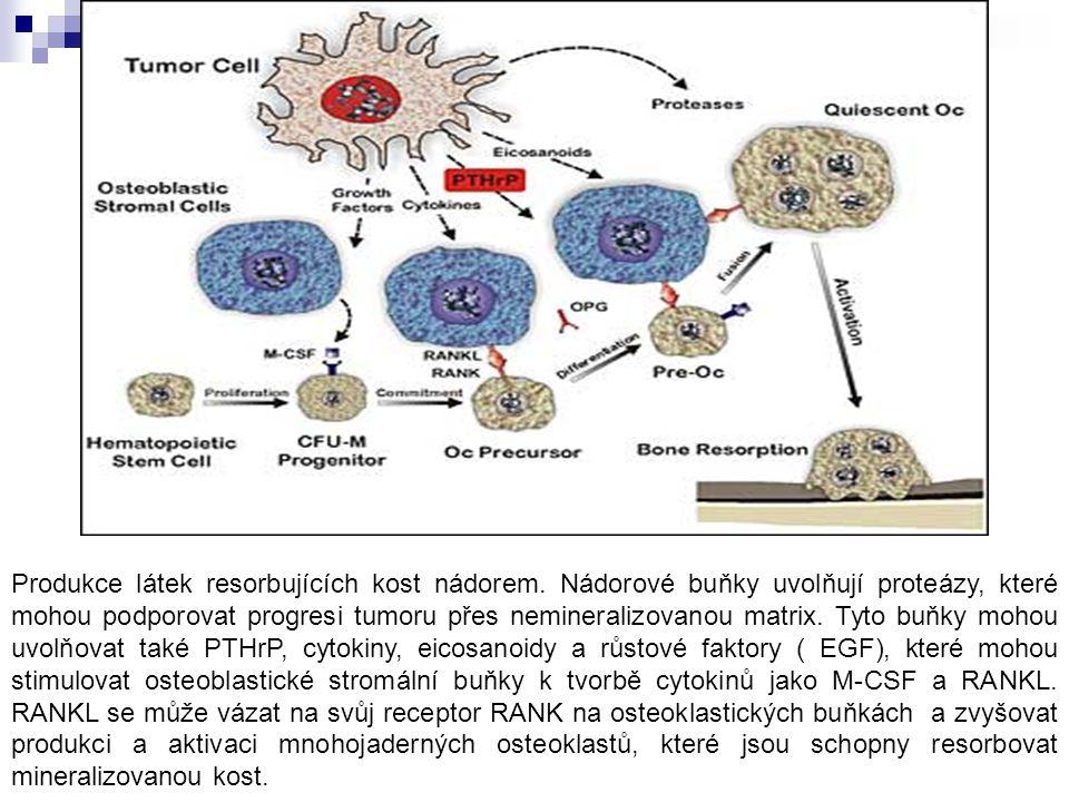 Produkce látek resorbujících kost nádorem. Nádorové buňky uvolňují proteázy, které mohou podporovat progresi tumoru přes nemineralizovanou matrix. Tyt