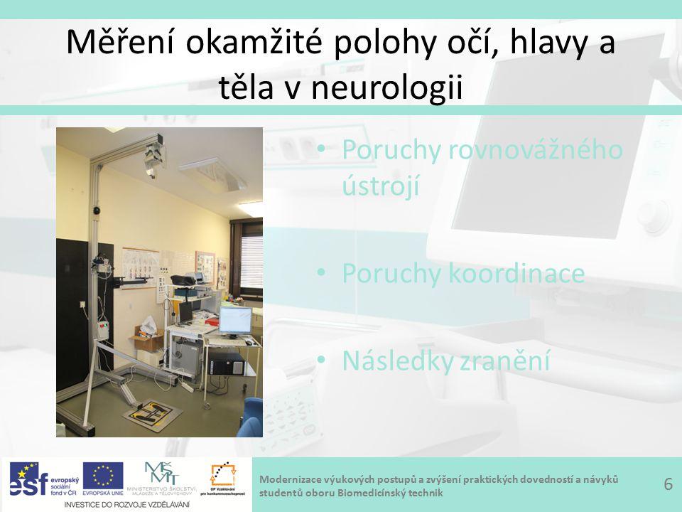 Modernizace výukových postupů a zvýšení praktických dovedností a návyků studentů oboru Biomedicínský technik Měření okamžité polohy očí, hlavy a těla v neurologii 6 Poruchy rovnovážného ústrojí Poruchy koordinace Následky zranění