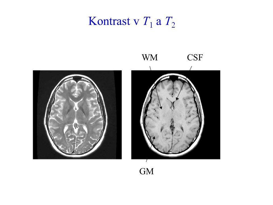 Kontrast v T 1 a T 2 WMCSF GM