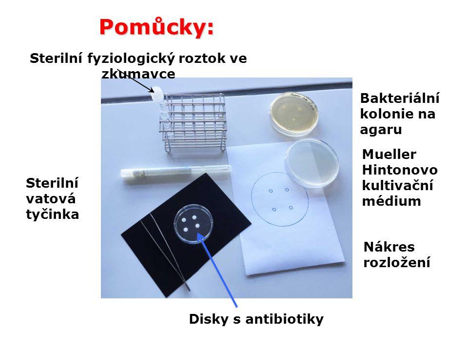 Pomůcky: Sterilní vatová tyčinka Bakteriální kolonie na agaru Disky s antibiotiky Mueller Hintonovo kultivační médium Nákres rozložení Sterilní fyziol