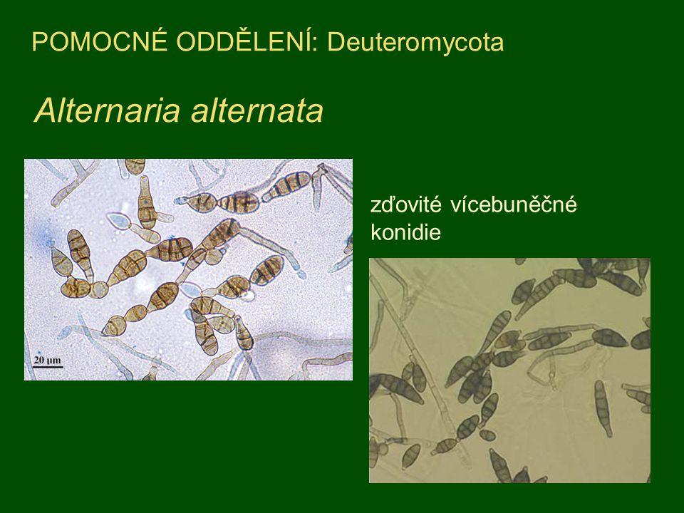 Aspergillus niger kolonie na agarovém médiu konidiofory Výskyt: zaplísněné potraviny, (např.