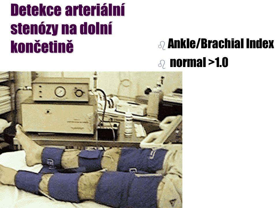 Detekce arteriální stenózy na dolní končetině b b Ankle/Brachial Index b b normal >1.0