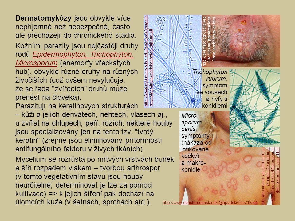 Dermatomykózy jsou obvykle více nepříjemné než nebezpečné, často ale přecházejí do chronického stadia. Kožními parazity jsou nejčastěji druhy rodů Epi