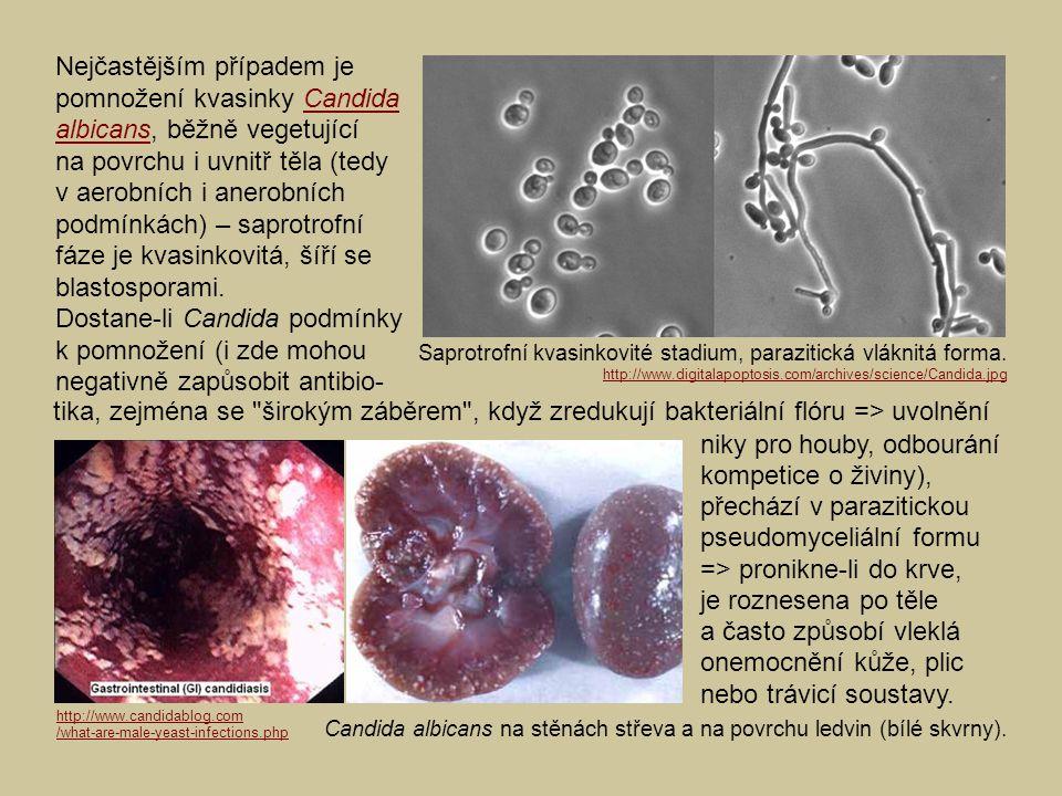 Saprotrofní kvasinkovité stadium, parazitická vláknitá forma. Nejčastějším případem je pomnožení kvasinky Candida albicans, běžně vegetující na povrch