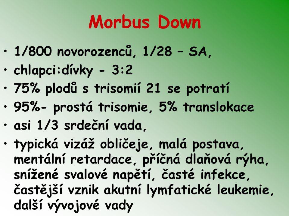 Morbus Down 1/800 novorozenců, 1/28 – SA, chlapci:dívky - 3:2 75% plodů s trisomií 21 se potratí 95%- prostá trisomie, 5% translokace asi 1/3 srdeční