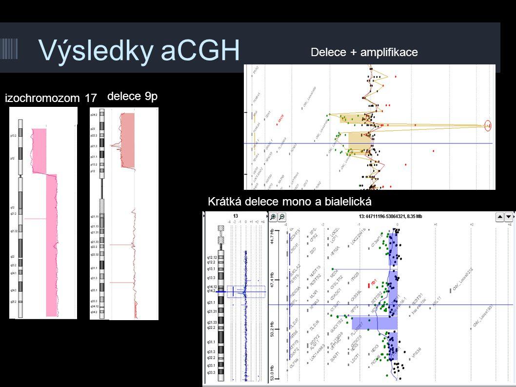 Výsledky aCGH delece 9p izochromozom 17 Delece + amplifikace Krátká delece mono a bialelická