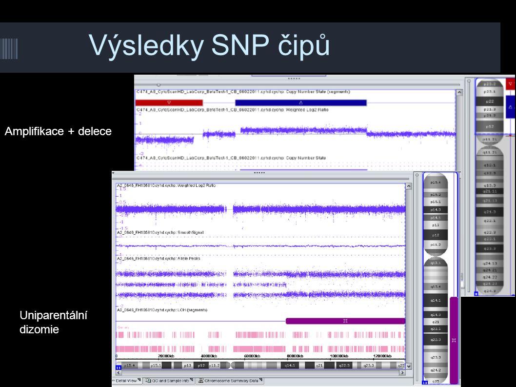 Výsledky SNP čipů Amplifikace + delece Uniparentální dizomie