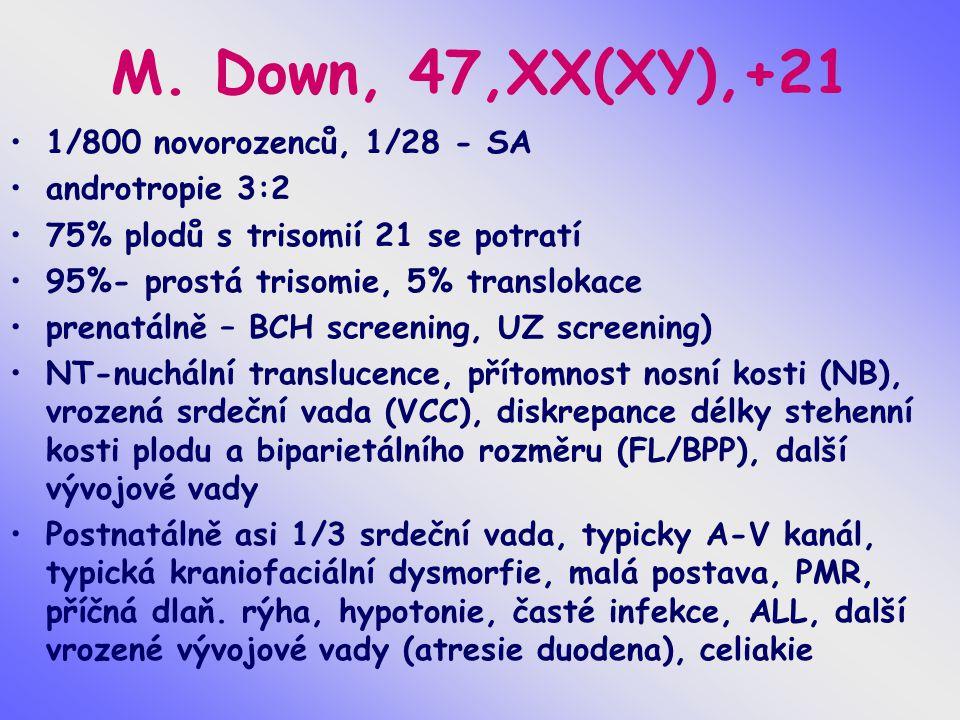 M. Down, 47,XX(XY),+21 1/800 novorozenců, 1/28 - SA androtropie 3:2 75% plodů s trisomií 21 se potratí 95%- prostá trisomie, 5% translokace prenatálně