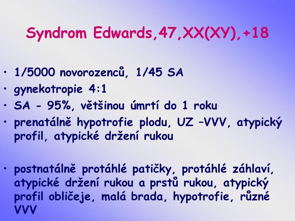 Syndrom Edwards,47,XX(XY),+18 1/5000 novorozenců, 1/45 SA gynekotropie 4:1 SA - 95%, většinou úmrtí do 1 roku prenatálně hypotrofie plodu, UZ –VVV, at