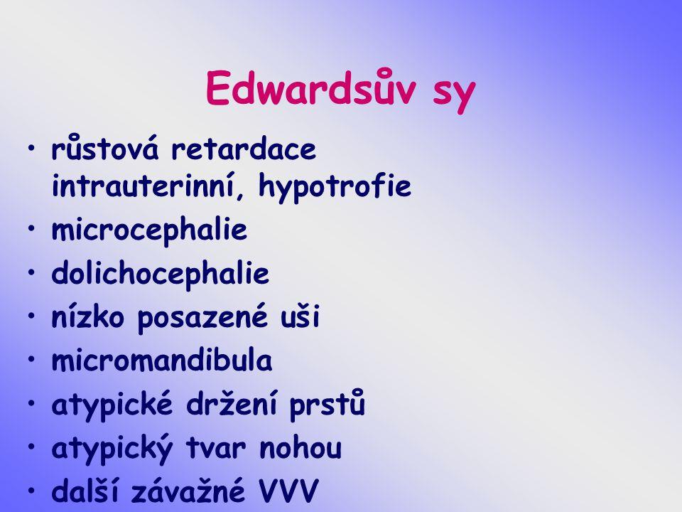 Edwardsův sy růstová retardace intrauterinní, hypotrofie microcephalie dolichocephalie nízko posazené uši micromandibula atypické držení prstů atypick