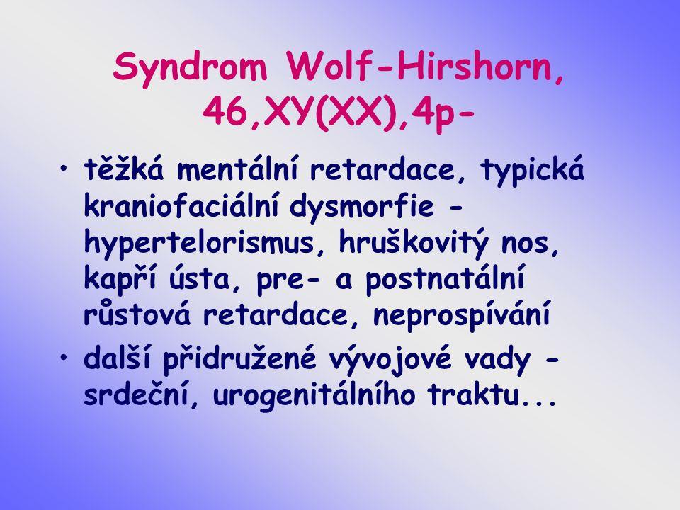 Syndrom Wolf-Hirshorn, 46,XY(XX),4p- těžká mentální retardace, typická kraniofaciální dysmorfie - hypertelorismus, hruškovitý nos, kapří ústa, pre- a
