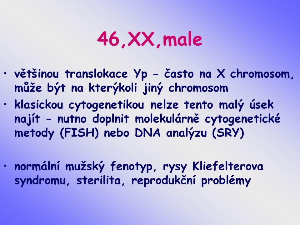 46,XX,male většinou translokace Yp - často na X chromosom, může být na kterýkoli jiný chromosom klasickou cytogenetikou nelze tento malý úsek najít -