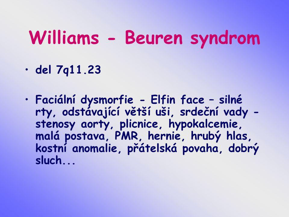 Williams - Beuren syndrom del 7q11.23 Faciální dysmorfie - Elfin face – silné rty, odstávající větší uši, srdeční vady - stenosy aorty, plicnice, hypo